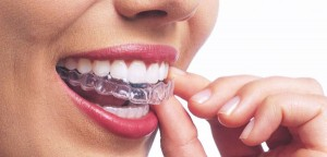 zubi gel izbjeljivanje